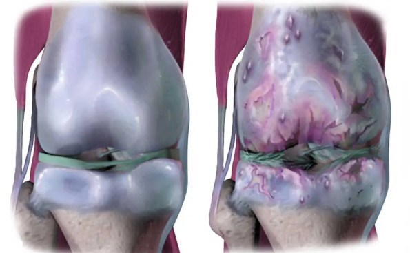 Osteoarthritis (Photo - BruceBlaus, wikimedia).