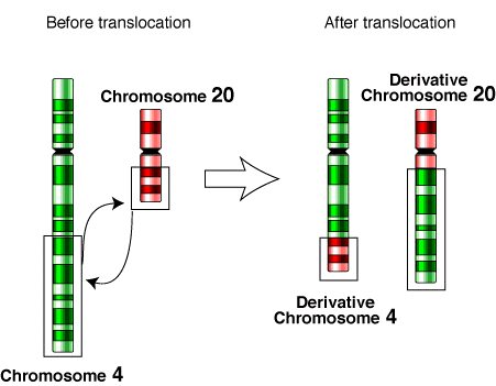 Chromosomal translocations point the way toward personalized cancer care