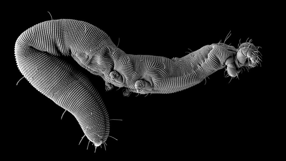 Sugar-coated nanoworms not for breakfast in the human immune system