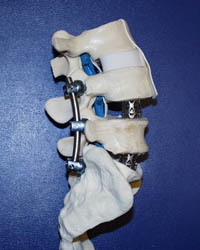 Spinal Fusion with Instrumentation