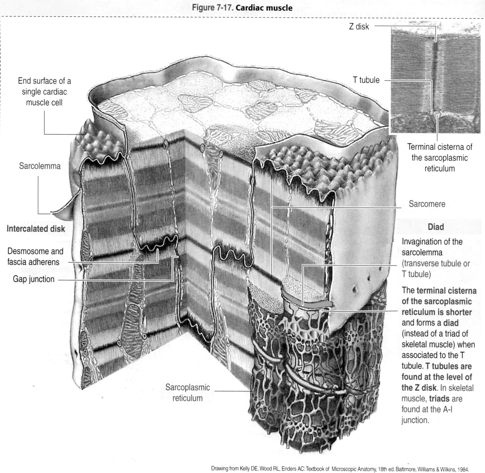 hight resolution of schematic diagram of cardiac muscle