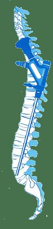 Enfermedades de la columna vertebral