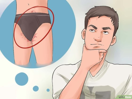 Immagine titolata Have Sex with Someone with Herpes Step 1