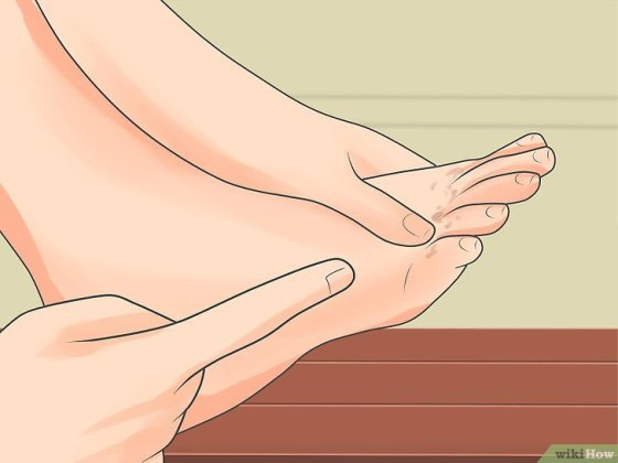 Immagine titolata Stop Severe Itching Step 11