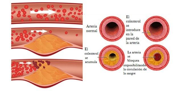 Buildup of cholesterol in the arteries