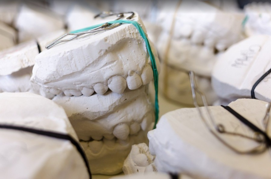 Are cavities and bad teeth genetic?