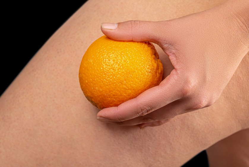 What is cellulite and can you get rid of it?