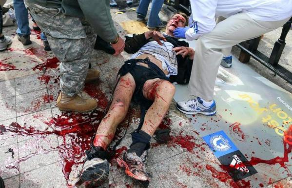 Boston Marathon bombing victom