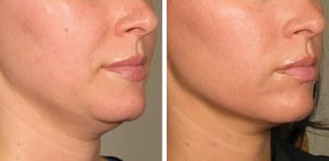 Before and after photos from a lower face Ultherapy treatment.