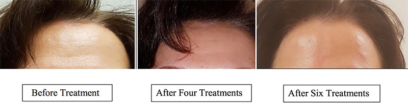 Acupuncture Facial Treatments