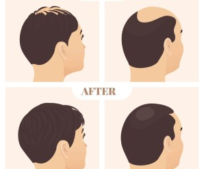 6 Simple (But Effective) Hacks You Can Do To Stop Hair Loss