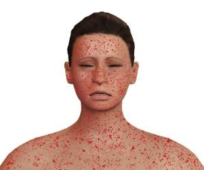 What Are The Natural Remedies For Dermatitis?