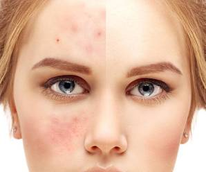 How To Get Rid Of Acne Scar?