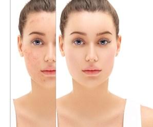 Acne Scar Treatment Tips