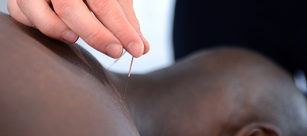 acupuncture complete physiotherapy
