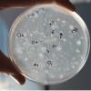 Aislamiento de bacterias fijadoras de nitrógeno presentes en el compost