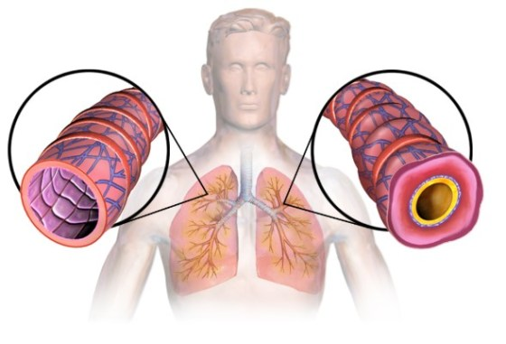 The effects of COVID-19 on asthma patients