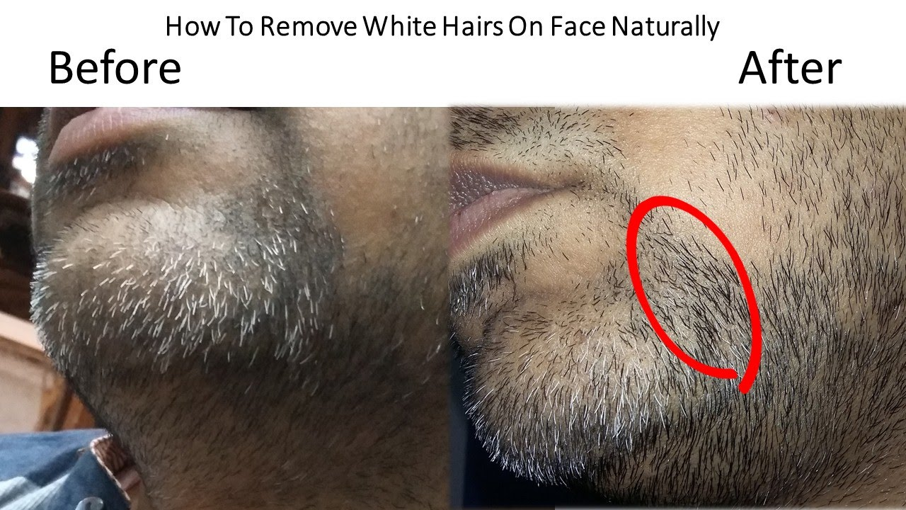 Natural Ways Prevent White Hairs Face Connecting Kerala