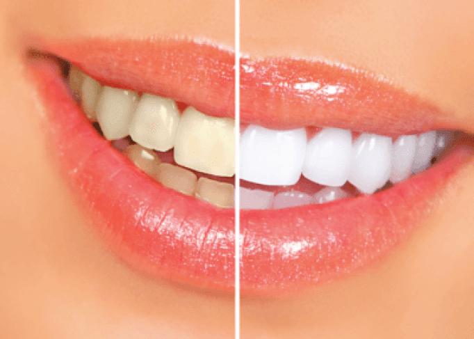 teeth discoloured from illness