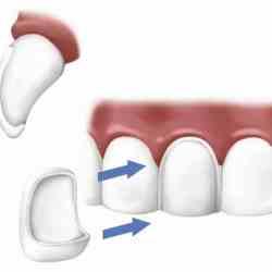 Conseil sur l'installation d'un facette sur dent dévitalisée