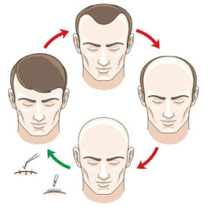 hair transplant cycle