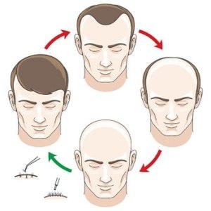 hair transplant cycle