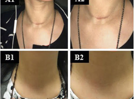cicatriz del cáncer de tiroides