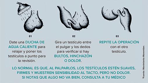 Autoexploración de los testículos