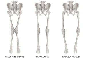 Osteotomiecorrettive del ginocchio