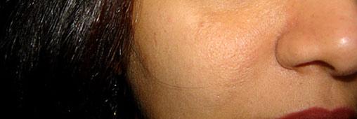 peau-visage-closeup-ban