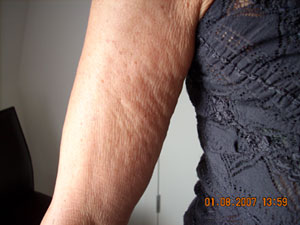Arm Before Carboxytherapy