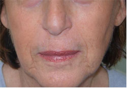 Nasolabial Folds After Carboxytherapy