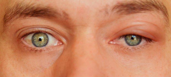 Blepharitis: Causes Treatment of Eyelid Inflammation