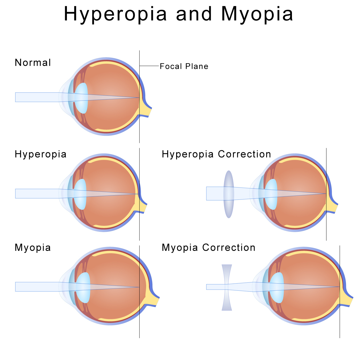 long and short sighted diagram gfi wiring hypermetropia farsightedness eye health central