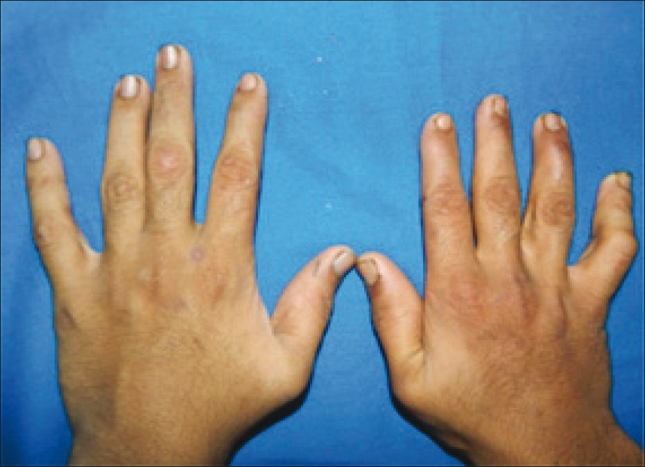 Clinodactyly Syndrome