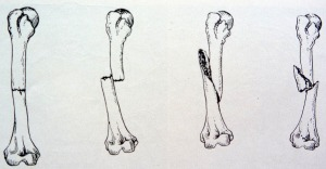 Some types of fractures, in Common dance injuries.