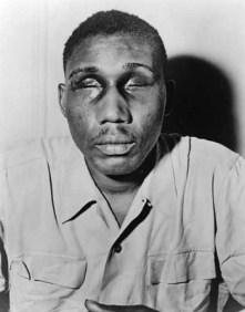 Photograph of World War II veteran Isaac Woodard with eyes swollen shut from aggravated assault and blinding.