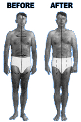 Rolfing before and after