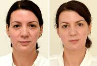 Can drinking water transform your looks