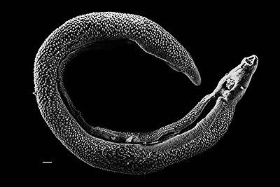 shistosome sm - Los Invertebrados Definición y carateristicas