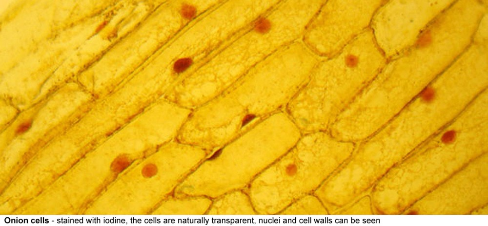 medium resolution of onion cells stained here with iodine the cells are naturally transparent the cellulose cell wall