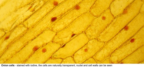 small resolution of onion cells stained here with iodine the cells are naturally transparent the cellulose cell wall