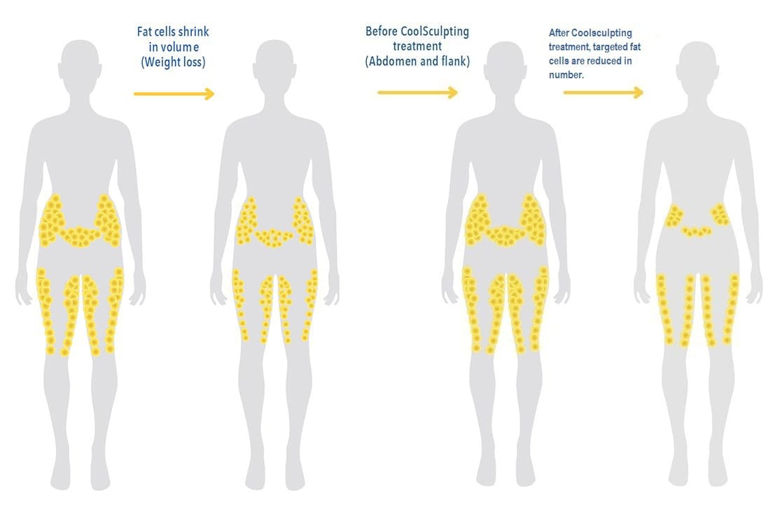 hight resolution of coolsculpting for men