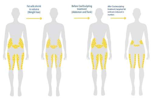 small resolution of coolsculpting for men