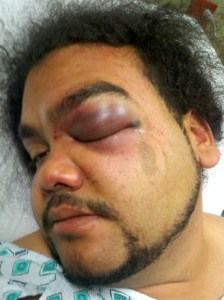 "Jose Lugo Not Guilty of Assaulting Rochester, NY Police Officer.    Juror: ""The Police officers Were Overzealous."""