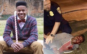 Martese Johnson Before After