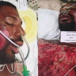 Third Degree Burns For Schizophrenic Man Held Down On Hot Pavement By Cops
