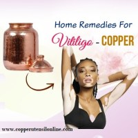 Can Copper Water Cure Vitiligo ?