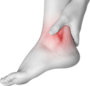 ankle-pain-image