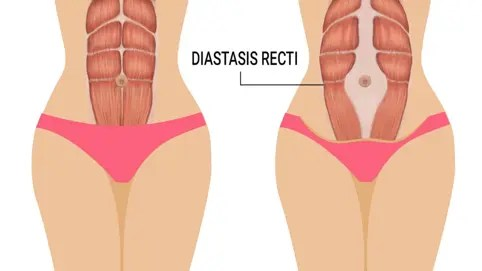 Difference between someone without (left) and with (right) Diastasis Recti Abdominis
